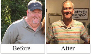 Rusty before after gastric sleeve surgery