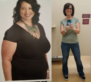 Sandra - Weight Loss Surgery Before and After Success Story - Mexico Bariatric Center