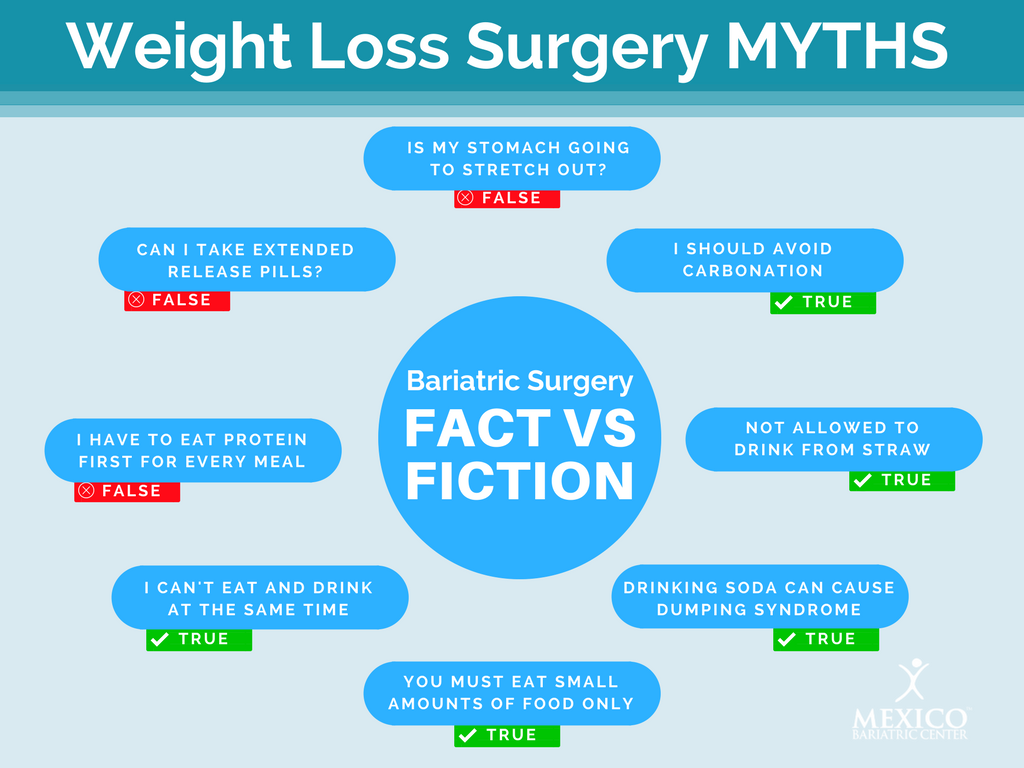 Bariatric Surgery Myths - Weight Loss Surgery