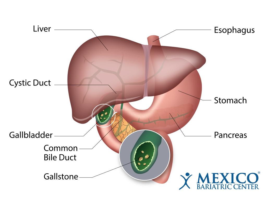 Gallbladder Gallstone