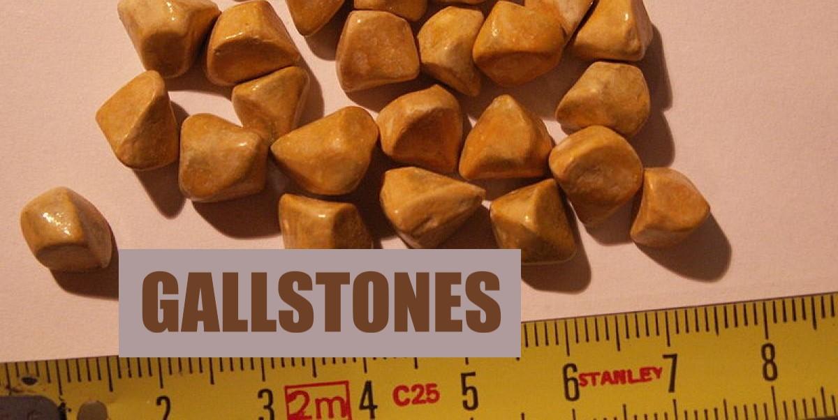 Gallstones Gallbladder - Mexico Bariatric Center