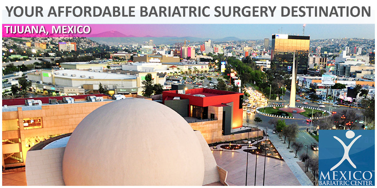 Tijuana, Mexico - Affordable Bariatric Surgery Destination