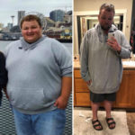 Colton W Before After Weight Loss Surgery MBC