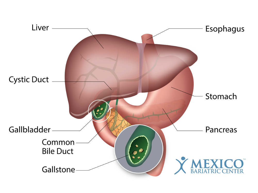 Gallstones After Weight Loss Surgery - Gallbladder Disease & Removal