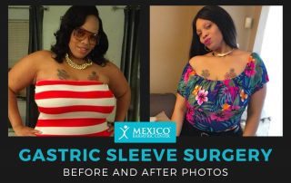Before and After Photos Gastric Sleeve Surgery - Sleeve Gastrectomy