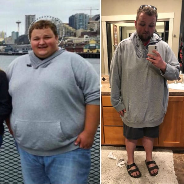 Colton - Gastric Sleeve Surgery - Gastric Sleeve Before and After Pictures - Male Photos