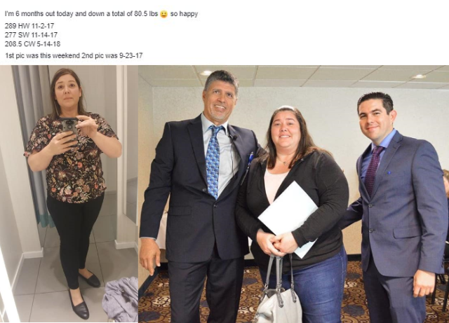 Darcy M before and after pictures - Winner of Mexico Bariartic Center Raffle in Seatle Seminar 2017