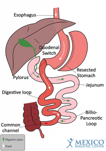 Mini Gastric Bypass Vs Duodenal Switch Mexico Bariatric Center