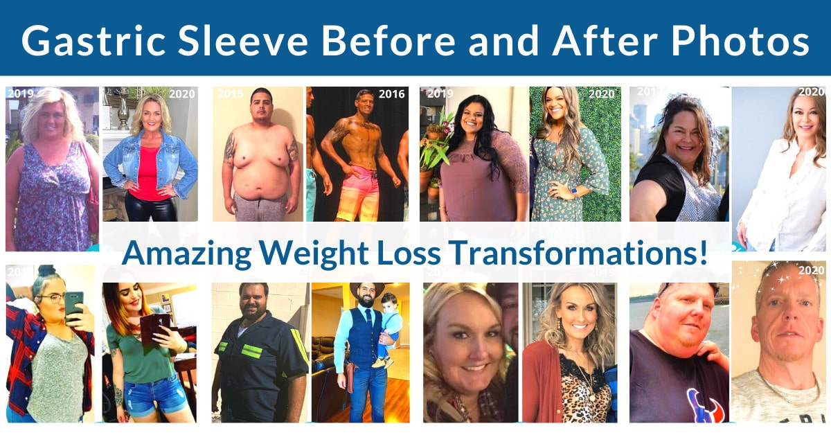 Gastric Sleeve Before and After Photos - Amazing Weight Loss Transformations