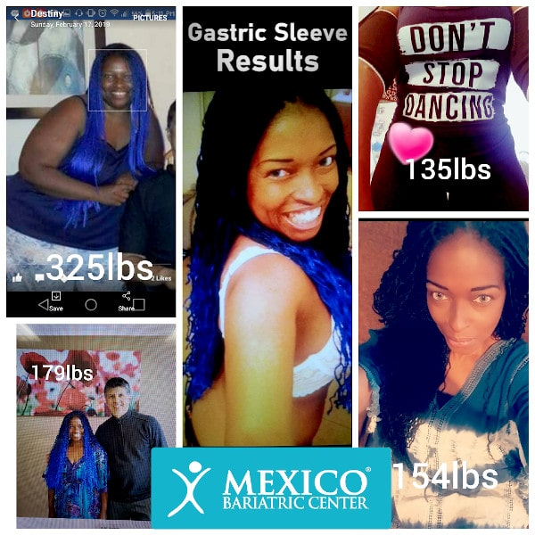 Gastric Sleeve Results Weight Loss Before and After Photo Destiny
