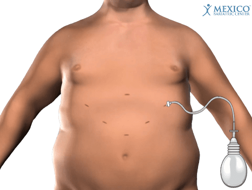 Gastric Sleeve Scars - Incisions During Surgery