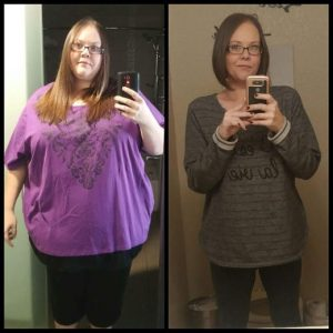 Gastric Bypass Before And After Photos Weight Loss Success Stories