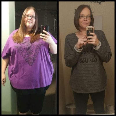 Heather - Gastric Bypass Surgery - Gastric Bypass Before and After Photos - Female Pictures