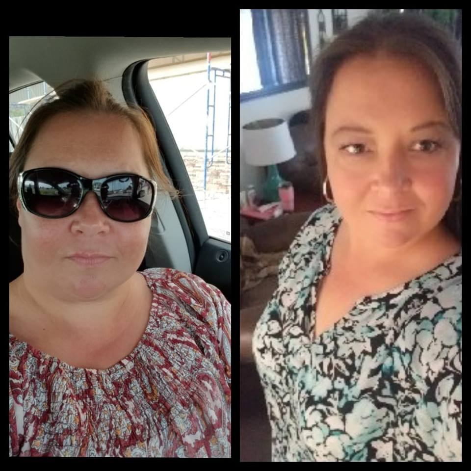 Jennifer - Gastric Bypass Surgery - Gastric Bypass Before and After Photos - Female Pictures