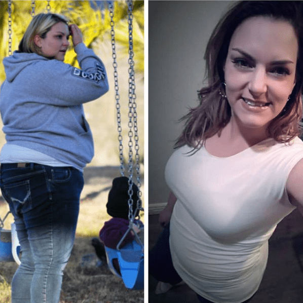 Karlee - Gastric Sleeve Surgery - Gastric Sleeve Before and After Pictures - Female Photos