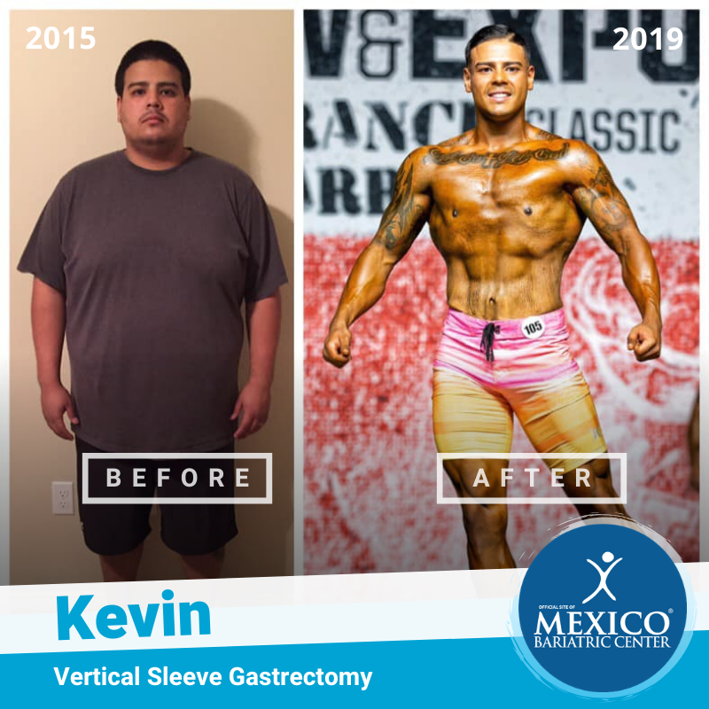 Kevin Ayala Total Transformation Body Builder Front - Mexico Bariatric Center