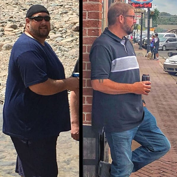 Kevin - Gastric Sleeve Surgery - Gastric Sleeve Before and After Pictures - Male Photos