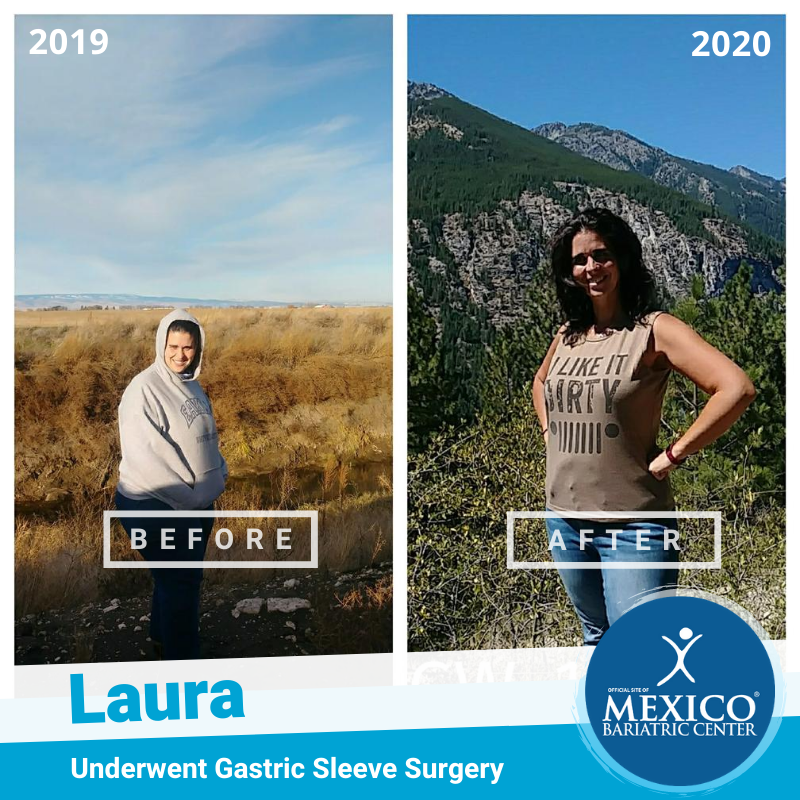 Laura C Before and After Gastric Sleeve in Mexico