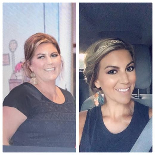 Gastric Sleeve Before And After Photos Best Success Stories 2018