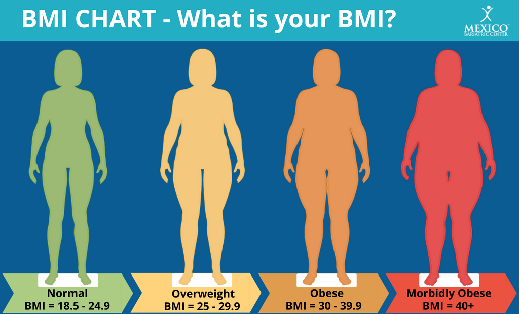 Morbidly Obese Chart - Am I Morbidly Obese? - Mexico Bariatric Center