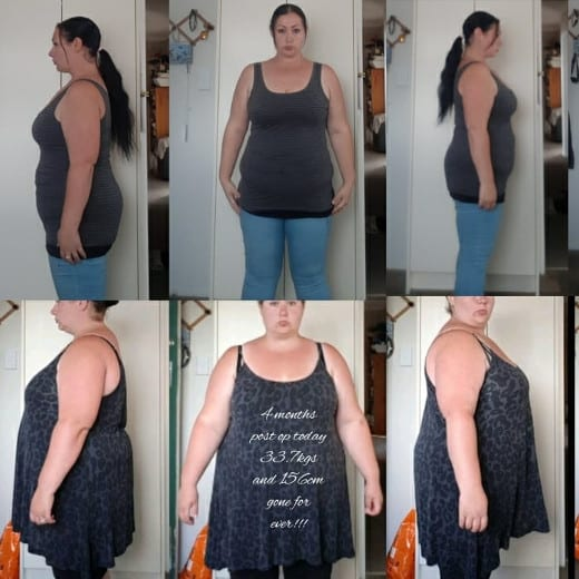 Rebecca Gastric Bypass Surgery - Gastric Bypass Before and After Photos - Female Pictures RNY