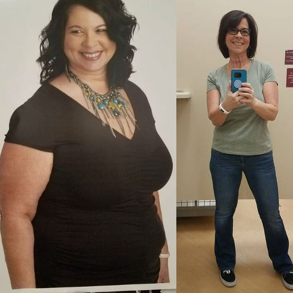 Sandra - Gastric Sleeve Surgery - Gastric Sleeve Before and After Pictures - Female Photos