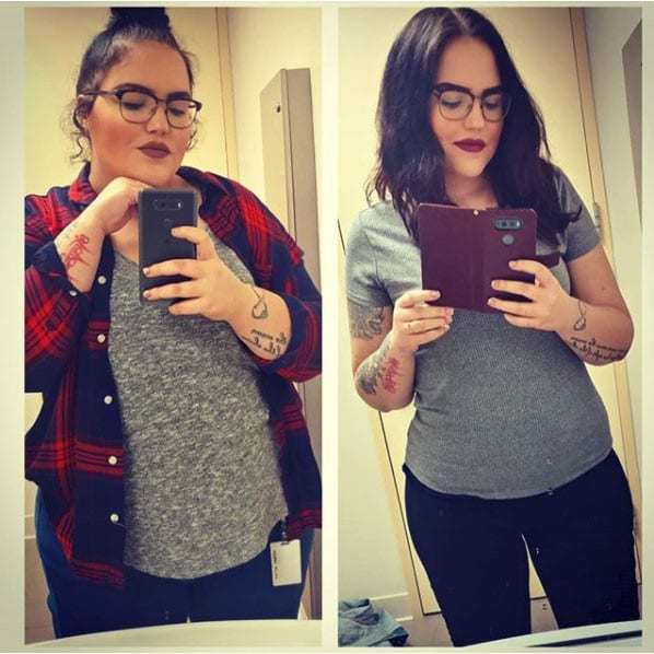 Taylor - Gastric Sleeve Surgery - Gastric Sleeve Before and After Pictures - Female Photos