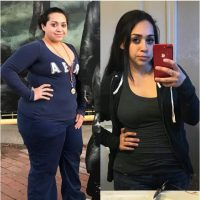 Tiffany - Gastric Bypass Surgery - Gastric Bypass Before and After Photos - Female Pictures - RNY