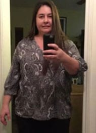Andrea S - Before Gastric Sleeve Surgery