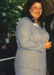 Anita D - Before Gastric Sleeve Surgery