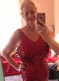 Barbara D - After Gastric Sleeve Surgery