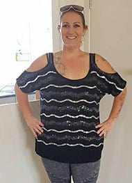 Casey - After Gastric Sleeve Surgery