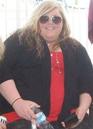 Cassandra - Before Gastric Sleeve Surgery