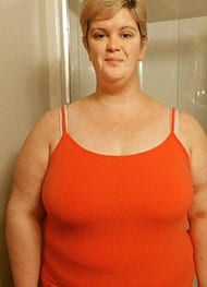 Erica S - Before Gastric Sleeve Surgery