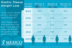 Gastric Sleeve Surgery Weight Loss Timeline - Month 3, 6, 12