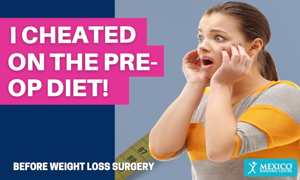 I Cheated on My Pre-Op Diet Before Bariatric Surgery