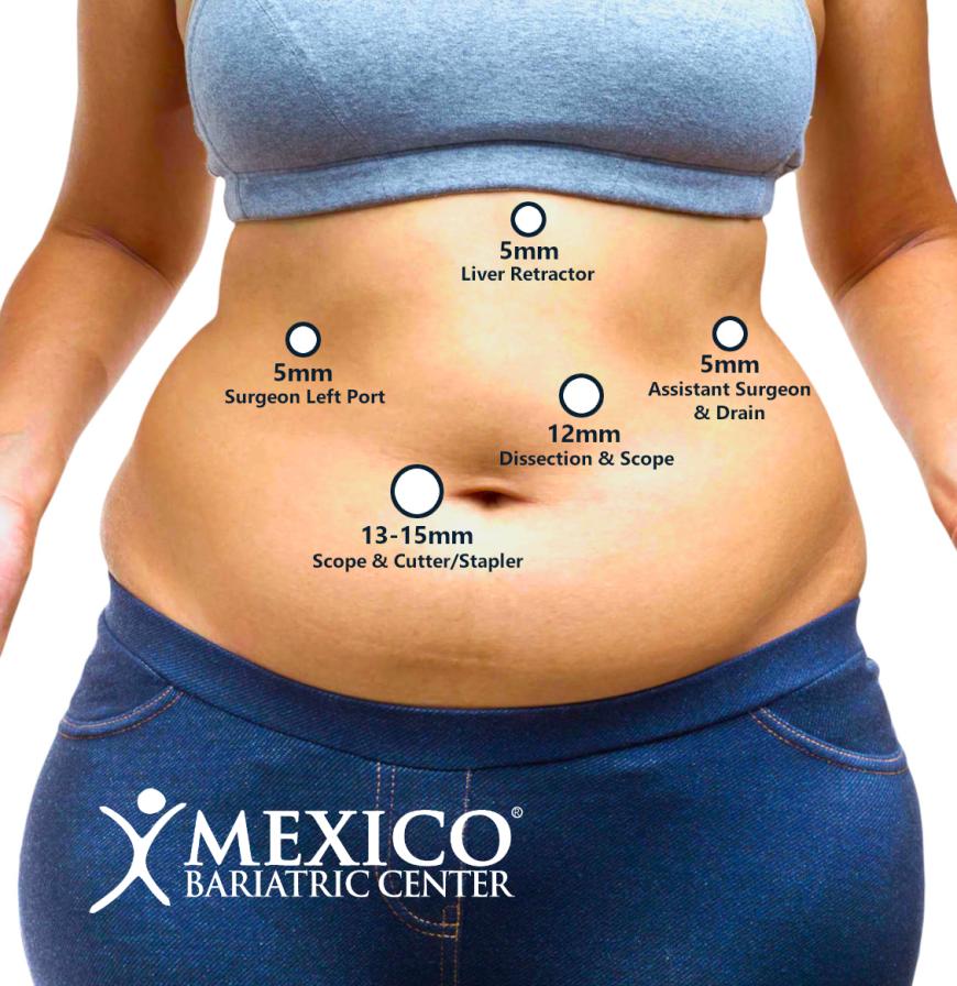Laparoscopic Surgery 5 Incisions - Gastric Sleeve - Sleeve Gastrectomy