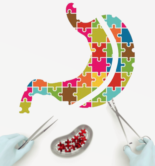 weight regain after gastric sleeve surgery - jigsaw puzzle