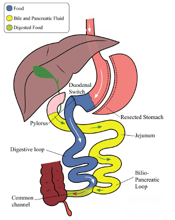 Duodenal Switch Digestive Tract - Sleeve vs Duodenal Switch