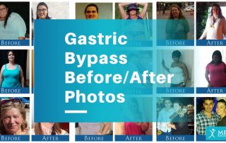 Gastric Bypass Before and After Photos - Patient Pictures
