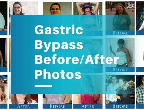 Gastric Bypass Surgery Before and After Pictures