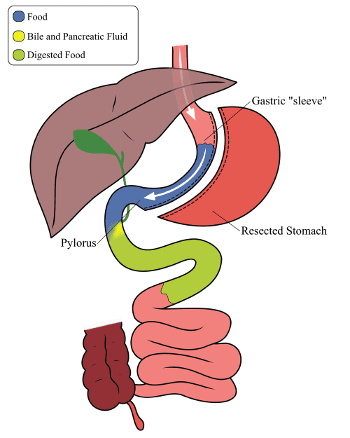 Gastric Sleeve Digestive Tract - Sleeve vs Duodenal Switch