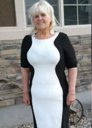 Kathy A - After Gastric Sleeve