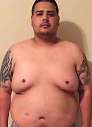 Kevin A - Before Gastric Sleeve
