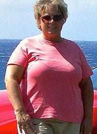 Leann - Before Gastric Sleeve Surgery