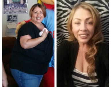 Maria Success Story After Weight Loss Surgery