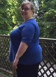 Rilla G - Before Gastric Sleeve