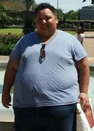 Robbie - Before Gastric Sleeve Surgery