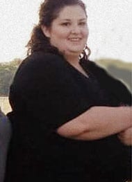 Rochelle - Before Gastric Sleeve Surgery