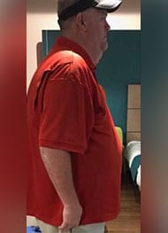 Rusty - Before Gastric Sleeve Surgery